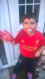 Biting Luis Suarez 2